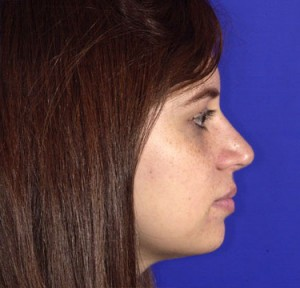 Rhinoplasty Photo - Patient 17 - After 2