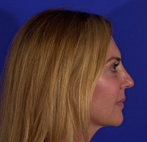 Rhinoplasty Photo - Patient 14 - After 2
